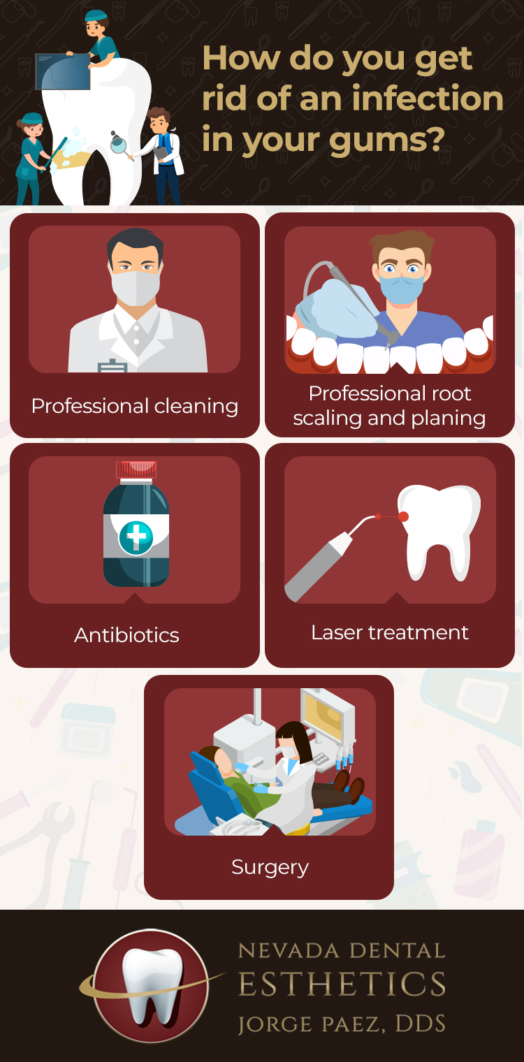 gum infection treatment infographic