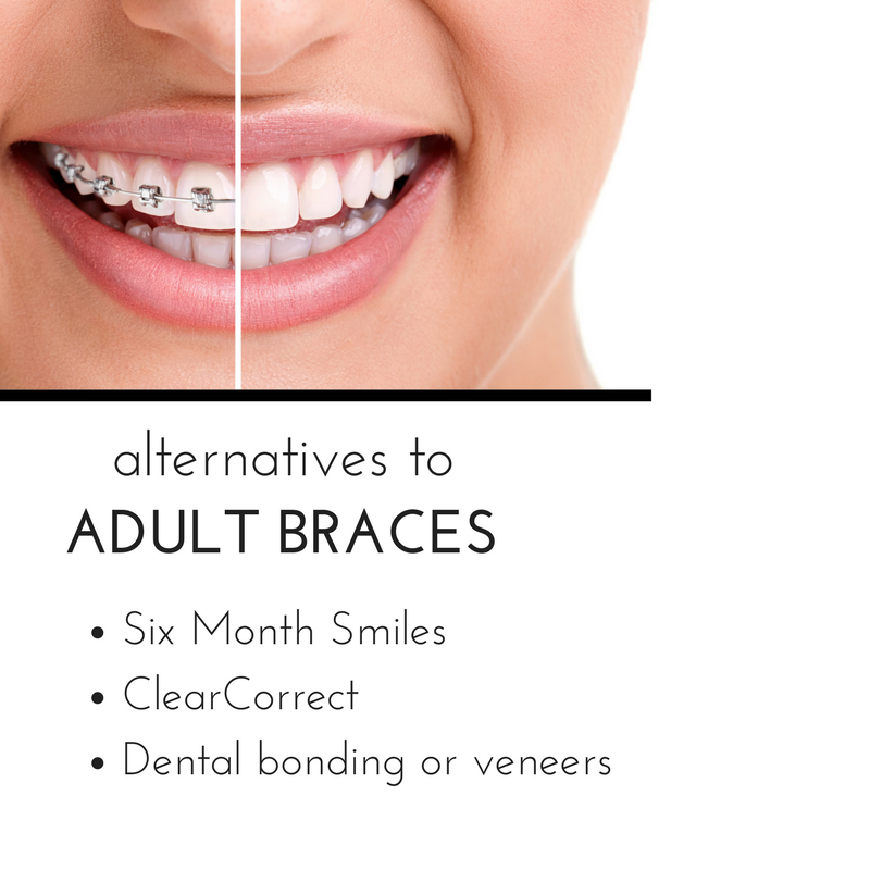 do I need adult braces