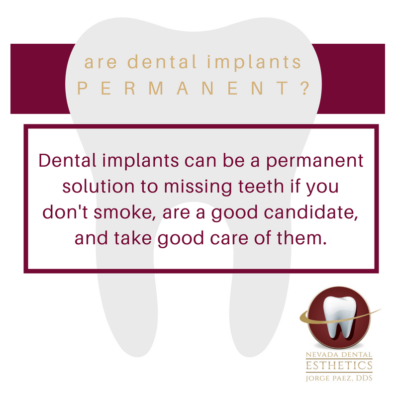 Dental implants are usually a permanent solution to missing teeth | Dr. Jorge Paez