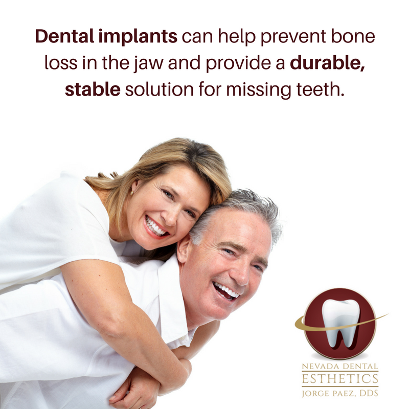 Dental implant benefits