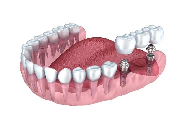 dental implant dental bridge dental crown las vegas cosmetic dentist