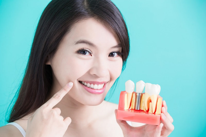 Dental implants | Dr. Jorge Paez | Las Vegas