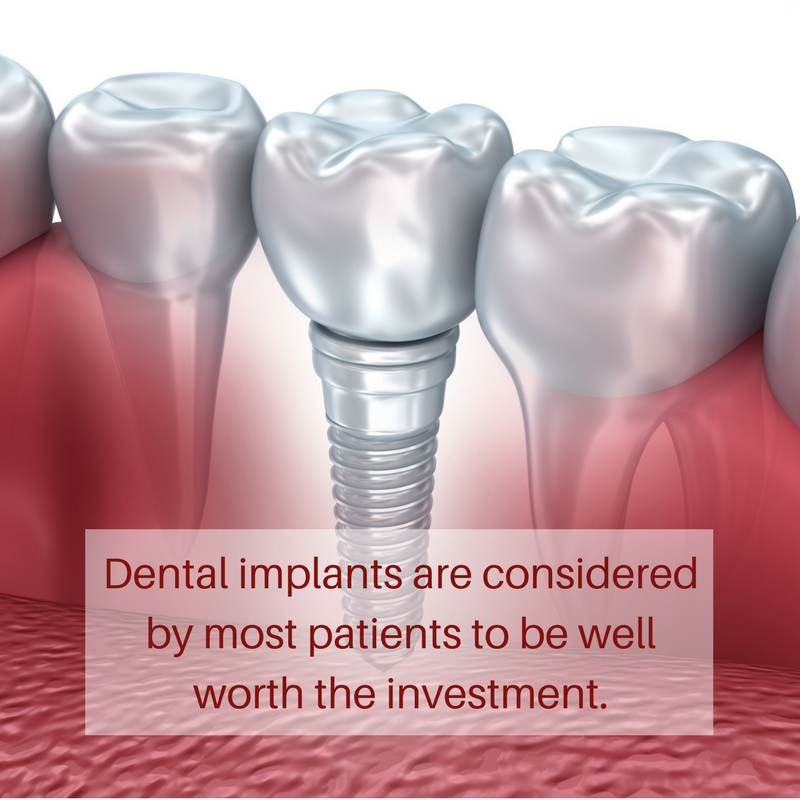 Are dental implants worth the cost in Las Vegas
