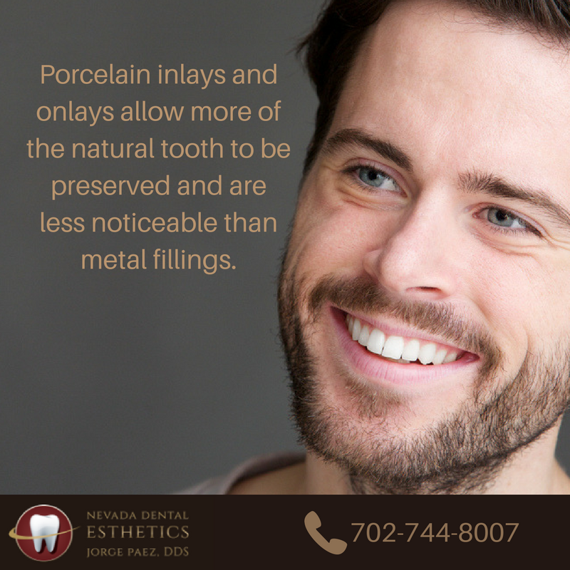Porcelain Inlays and Onlays | Las Vegas Cosmetic Dentist