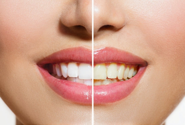 teeth whitening las vegas cosmetic dentist