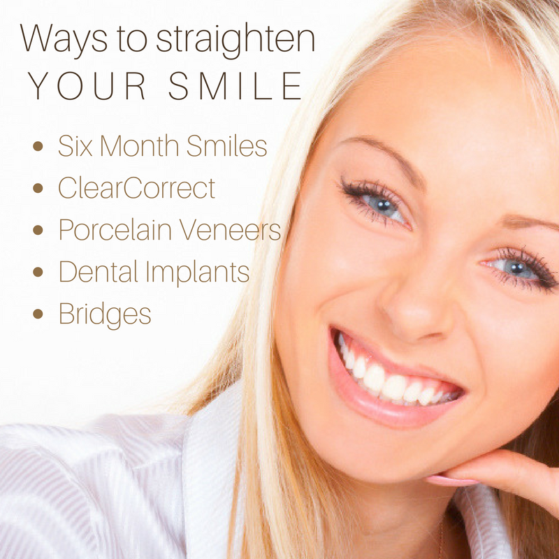 how to fix crooked teeth | las vegas, nv